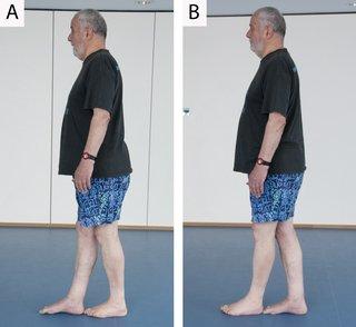 Exercises to improve balance & mobility